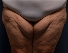 Thigh Lift Before Photo by Michael Frederick, MD; West palm beach, FL - Case 36559