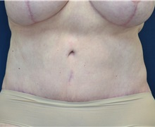Tummy Tuck After Photo by Michael Frederick, MD; West palm beach, FL - Case 36573