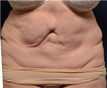 Tummy Tuck Before Photo by Michael Frederick, MD; West palm beach, FL - Case 36573