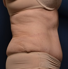 Tummy Tuck After Photo by Michael Frederick, MD; West palm beach, FL - Case 36575