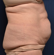 Tummy Tuck Before Photo by Michael Frederick, MD; West palm beach, FL - Case 36575