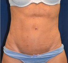 Tummy Tuck After Photo by Michael Frederick, MD; Palm Beach Gardens, FL - Case 36896