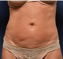 Tummy Tuck Before Photo by Michael Frederick, MD; Palm Beach Gardens, FL - Case 36896
