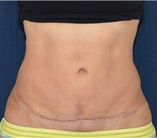Tummy Tuck After Photo by Michael Frederick, MD; Fort Lauderdale, FL - Case 37008
