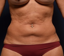 Tummy Tuck Before Photo by Michael Frederick, MD; Fort Lauderdale, FL - Case 37008
