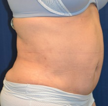 Tummy Tuck After Photo by Michael Frederick, MD; Fort Lauderdale, FL - Case 37026