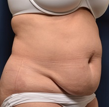 Tummy Tuck Before Photo by Michael Frederick, MD; Fort Lauderdale, FL - Case 37026