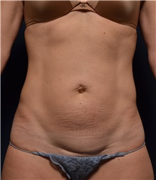 Tummy Tuck Before Photo by Michael Frederick, MD; West palm beach, FL - Case 37032