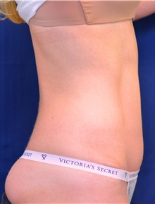 Tummy Tuck After Photo by Michael Frederick, MD; West palm beach, FL - Case 37032