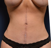 Tummy Tuck After Photo by Michael Frederick, MD; Fort Lauderdale, FL - Case 37055