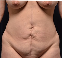 Tummy Tuck Before Photo by Michael Frederick, MD; Fort Lauderdale, FL - Case 37055