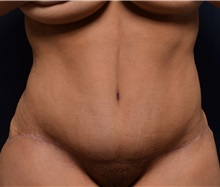 Tummy Tuck After Photo by Michael Frederick, MD; West palm beach, FL - Case 37061