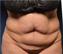 Tummy Tuck Before Photo by Michael Frederick, MD; West palm beach, FL - Case 37061