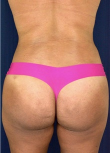Buttock Lift with Augmentation After Photo by Michael Frederick, MD; Fort Lauderdale, FL - Case 39713