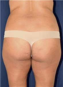 Buttock Lift with Augmentation Before Photo by Michael Frederick, MD; Fort Lauderdale, FL - Case 39713