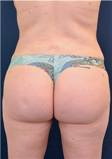 Buttock Lift with Augmentation After Photo by Michael Frederick, MD; West palm beach, FL - Case 39714