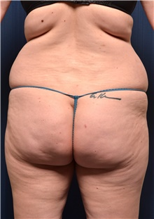Buttock Lift with Augmentation Before Photo by Michael Frederick, MD; West palm beach, FL - Case 39714