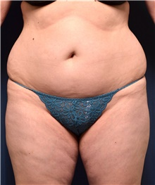 Buttock Lift with Augmentation Before Photo by Michael Frederick, MD; Fort Lauderdale, FL - Case 39714
