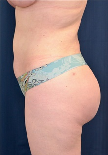 Buttock Lift with Augmentation After Photo by Michael Frederick, MD; Fort Lauderdale, FL - Case 39714