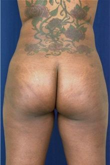 Buttock Lift with Augmentation After Photo by Michael Frederick, MD; Fort Lauderdale, FL - Case 39716