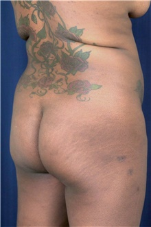 Buttock Lift with Augmentation Before Photo by Michael Frederick, MD; Fort Lauderdale, FL - Case 39716