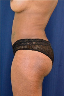 Buttock Lift with Augmentation After Photo by Michael Frederick, MD; Fort Lauderdale, FL - Case 39717