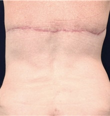 Body Contouring After Photo by Michael Frederick, MD; Fort Lauderdale, FL - Case 39718