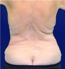 Body Contouring Before Photo by Michael Frederick, MD; Fort Lauderdale, FL - Case 39718