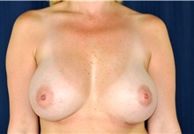 Breast Augmentation After Photo by Michael Frederick, MD; West palm beach, FL - Case 39773