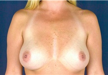 Breast Augmentation Before Photo by Michael Frederick, MD; West palm beach, FL - Case 39773