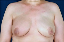 Breast Reconstruction After Photo by Michael Frederick, MD; Fort Lauderdale, FL - Case 39814