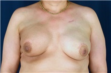 Breast Reconstruction Before Photo by Michael Frederick, MD; Fort Lauderdale, FL - Case 39814