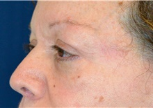 Eyelid Surgery After Photo by Michael Frederick, MD; Fort Lauderdale, FL - Case 39818