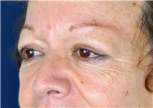 Eyelid Surgery Before Photo by Michael Frederick, MD; Fort Lauderdale, FL - Case 39818