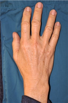 Hand Surgery After Photo by Michael Frederick, MD; Fort Lauderdale, FL - Case 39874