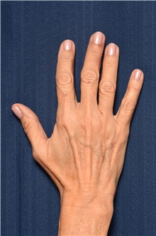 Hand Surgery Before Photo by Michael Frederick, MD; Fort Lauderdale, FL - Case 39874