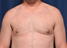 Male Breast Reduction After Photo by Michael Frederick, MD; Fort Lauderdale, FL - Case 39875