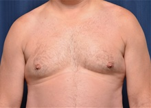 Male Breast Reduction Before Photo by Michael Frederick, MD; Fort Lauderdale, FL - Case 39875