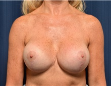 Breast Implant Revision After Photo by Michael Frederick, MD; Fort Lauderdale, FL - Case 39917