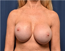 Breast Implant Revision Before Photo by Michael Frederick, MD; Fort Lauderdale, FL - Case 39917