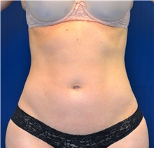 Liposuction After Photo by Michael Frederick, MD; Fort Lauderdale, FL - Case 39949