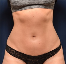 Liposuction Before Photo by Michael Frederick, MD; Fort Lauderdale, FL - Case 39949