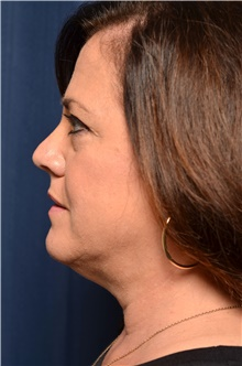 Liposuction Before Photo by Michael Frederick, MD; Fort Lauderdale, FL - Case 39983