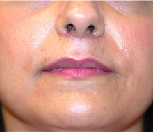Lip Augmentation / Enhancement After Photo by Michael Frederick, MD; Fort Lauderdale, FL - Case 39991
