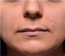 Lip Augmentation / Enhancement Before Photo by Michael Frederick, MD; Fort Lauderdale, FL - Case 39991