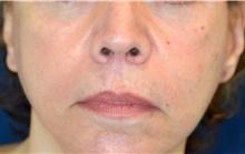 Lip Augmentation / Enhancement After Photo by Michael Frederick, MD; Fort Lauderdale, FL - Case 39993