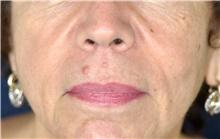 Lip Augmentation / Enhancement Before Photo by Michael Frederick, MD; Fort Lauderdale, FL - Case 39993