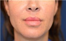 Lip Augmentation / Enhancement After Photo by Michael Frederick, MD; Fort Lauderdale, FL - Case 39994