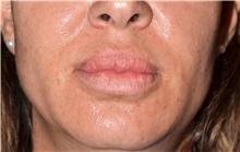 Lip Augmentation / Enhancement Before Photo by Michael Frederick, MD; Fort Lauderdale, FL - Case 39994