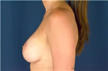 Breast Lift After Photo by Michael Frederick, MD; Fort Lauderdale, FL - Case 40005